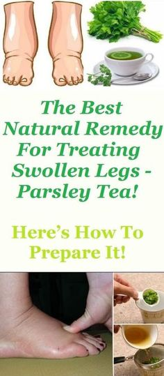 The Best Natural Remedy For Treating Swollen Legs - Parsley Tea! Here's How To Prepare It!