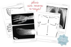 Kids Play X-Rays Download - A Tried & True Free Printable