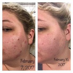Once I hit my late 20s I started to struggle with hormonal acne (thx PCOS) on top of having super sensitive skin. I so get the struggle and will always have a soft spot for others who struggle. ❤ ****** Look at this young ladies short transformation!! Imagine what her skin looks like now!? These products work. (She used the acne line.) You have to be consistent and, don't forget, drink water!