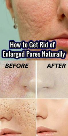 Skin Care : How to Get Rid of Enlarged Pores Natur. - Skin Care : How Skin Primer, Reduce Pore Size, Piel Natural, Natural Facial, Tighten Pores, How To Exfoliate Skin, Skin Elasticity, Combination Skin, Acne Scars