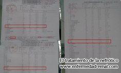 El Paciente de Enfermedad Renal de la Etapa 4 con la Creatinina 445 Evita la Diálisis con Exito