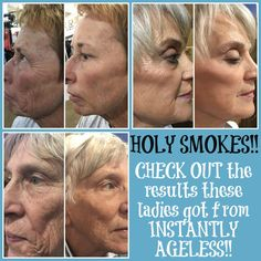 A teammate of mine did a show last week and these are some of the AMAZING results they had from the demos they did with Instantly Ageless!
