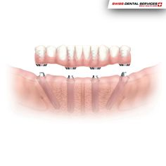 We have many solutions that will allow you to smile again without embarrassment.www.swissdentalservices.com/en