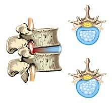 image of spinal disc - Schematic drawing of hernia of the disc slipped disc - JPG Pinched Nerve In Shoulder, Extreme Lower Back Pain, Trapped Nerve, Whiplash Injury, Spinal Canal, Spinal Nerve, Spinal Cord, Lumbar Pain, Disk Herniation