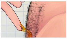 INDRUKWEKKEND! Hoe je op natuurlijke wijze lichaamshaar permanent kan verwijderen(Zonder Waxen of scheren)