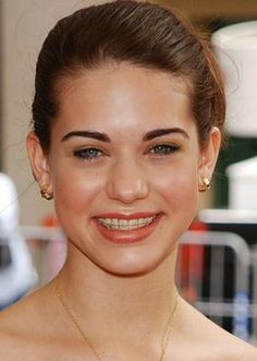 Lyndsy Fonseca shows us that she wears clear braces throughout her orthodontic treatment. Celebrities With Braces, Damon Braces, Ceramic Braces, Braces Girls, Lyndsy Fonseca, Braces Colors, Celebrity Smiles, Brace Face, Perfect Teeth