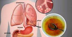 U fajčiarov dochádza k zvýšenému ukladaniu dechtu, rôznych toxínov a iných nečistôt v pľúcach. Tento sirup vám ich pomôže znova vyčistiť.
