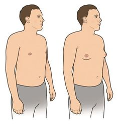 Gynecomastia surgery cost in Hyderabad, 09 Male breast surgery treatment Pay-in-monthly starting price cost and insurance and cashless treatment gynecomastia surgery Tricyclic Antidepressant, Top Hospitals, Extra Skin, Plastic Surgery Procedures, Female Hormones, Tummy Tucks, Hormone Imbalance, Breast Cancer