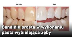 Kliknij i przeczytaj ten artykuł! Body Care, Beauty Hacks, Vegetables, Food, Wax, Beauty Tricks, Hoods, Vegetable Recipes, Meals