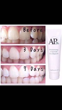 Fast Cellulite Removal Home Remedies Ap 24 Whitening Toothpaste, Whitening Fluoride Toothpaste, Teeth Whitening Remedies, Teeth Whitening System, Best Teeth Whitening, Stained Teeth, Belleza Natural, Skin Care, Beauty