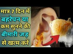 बहरेपन व कम सुनाई देने की बीमारी का पक्का ईलाज    Get rid of deafness and low hearing Power - YouTube Healthy Tips, Diy And Crafts, Ear, Youtube, Youtubers, Youtube Movies