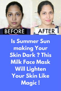 Is Summer Sun making Your Skin Dark ? This Milk Face Mask Will Lighten Your Skin Like Magic ! As Indians, we are constantly worried about our skin getting dark and uneven patches from sun exposure, instead of opting for the expensive de-tan or fairness fa Skin Care Routine For 20s, Skincare Routine, Beauty Routines, Lighten Skin, Homemade Face Masks, Tan Skin, Best Anti Aging, Tips Belleza, Skin Brightening