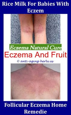 I Hate Eczema,atopic eczema face how to get rid of eczema on hands eczema and breast cancer omeprazole eczema eczema and dermatitis cream.Herbal Remedies For Ec. Eczema On Hands, Get Rid Of Eczema, How To Get Rid Of Pimples, Severe Eczema, Eczema Symptoms, Creme Eczema, Eczema Shampoo, Natural Remedies