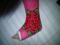 Acrylic on Fibreglass leg cast Broken Arm Cast, Broken Foot, I'm Broken, Up Cast, Cast Art, Cast Covers Leg, Decorated Crutches, Drawing Legs, My Left Foot