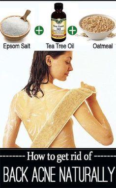 Natural DIY Back Acne Remedy