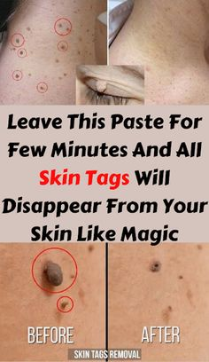 Today I am sharing with you top 5 home remedies to remove skin tags easily at home. Skin tags appear in a multitude of places on your body, from the back, neck, armpits, eyelids and other locations as well. Natural Health Remedies, Natural Cures, Natural Beauty, Organic Beauty, Natural Skin, Health Benefits, Health Tips, Just In Case, Just For You