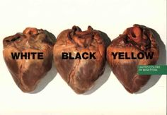 this one of three hearts. It shows that no matter the color we have for skin we all are the same on the inside. It's a wonderfully symbolic way of showing people that racism is wrong.