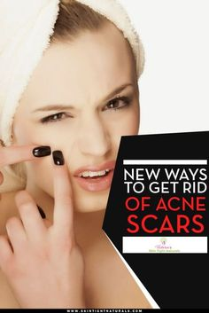 New Ways To Get Rid of Acne Scars  find more relevant stuff…