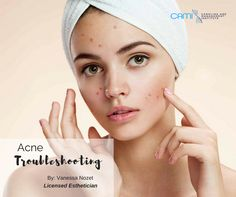 Does makeup cause acne.Natural remedies for acne scars.What to do if acne is particularly aggressive.appearance of acne scars.Get rid of acne scars. Acne And Pimples, Acne Skin, Acne Prone Skin, Acne Scars, Red Pimples, Pimple Marks, Oily Skin, Acne Facial, Sensitive Skin