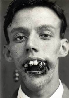 Early 20th century photograph. Appears to be some type of dental reconstruction on his teeth./ very attractive