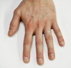 Hvis du tror, du mangler et bestemt vitamin, så tjek dine negle og find ud af hvad