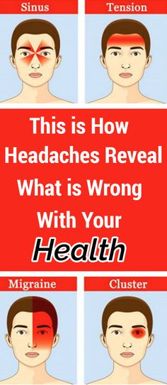 This is How Headaches Reveal What is Wrong With Your Health – Natural Remedies Hair Health, Health Diet, Health And Nutrition, Health And Wellness, Health Care, Wellness Tips, Daily Health Tips, Health And Fitness Tips, Health And Beauty