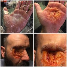 When you attempt @stuartbray73 burnt flesh technique by manipulating silicone under cling film and it looks like shit. Tear it off and glue it to your face. Instant deformed eye socket. #specialfx #specialeffects #specialeffectsmakeup #sfx #sfxmakeup #fxmakeup #fx #makeup #mua