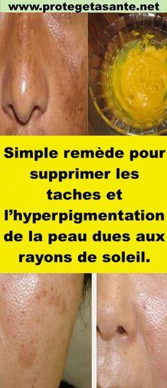Simple remède pour supprimer les taches et l'hyperpigmentation de la peau dues aux rayons de soleil. Body Care, Fruit, Simple, Beauty, Food, Medicine, Skin Care, Hair, Black Spots On Skin