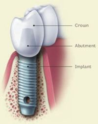 Dental Implant - so glad I have 2 of these.
