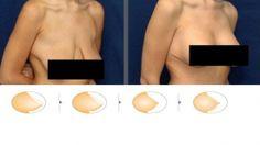 Voici un Super-masque naturel contre les seins affaissés … Des résultats étonnants après 5 jours seulement !!