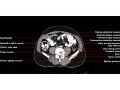 CT of the Abdomen Axial Anatomy | RADIOLOGYPICS.COM