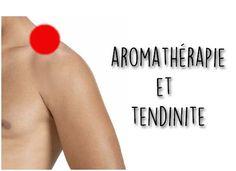 {lang: 'fr'} Si vous souffrez d'une tendinite au bras, d'une tendinite à l'épaule ou d'une tendinite au poignet, lisez cet article sans attendre pour
