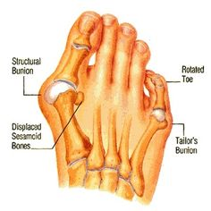 """7 Incredible Natural Cure For Bunions"" Really they won't cure bunions, but they would help with the pain.  What helps most is wearing shoes that are wide enough and avoiding heels.  Although not all bunions are caused by heels, no one with bunions will enjoy a high heel."