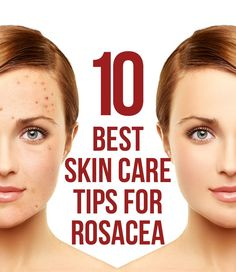 10 Best Skin Care Tips For Rosacea