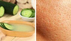 Cómo preparar una mascarilla casera para cerrar los poros con ingredientes naturales - Mejor con Salud