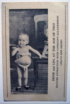"ERNIE - LEN DEFORT a Parasitic Twin Circus Sideshow Freak - Billed as ""Two Living Brothers With Only One Head"", ""The Living Thotacopagus Paristiticus"" & ""Two Bodies - One Head - Four Arms - Four Legs"". Ernie Len was featured on the Sideshow Midway with Conklin's All-Canadian Shows,"
