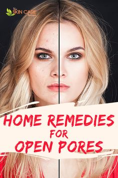 Here are some great home remedies for open pores. Here is where you can discover how to reduce large skin pores and close open pores on face as well as various diy remedies for clogged pores. #reduceskinpores #skinporeremedies #unclogskinpores How To Open Pores, How To Close Pores, Open Pores On Face, Clear Skin Routine, Clear Skin Tips, Oily Skin Care, Face Skin Care, Skin Care Remedies, Acne Remedies