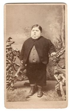 CDV Circus Sideshow Freak Boy with Physical Deformity Vintage | eBay