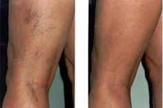 If your varicose veins and spider leg veins are causing you discomfort, you may need to consult for the laser treatment in Chicago. Simple laser treatment, sclerotherapy & many more… Varicose Vein Remedy, Varicose Veins Treatment, Varicose Vein Removal, Spider Vein Treatment, Natural Treatments, Natural Remedies, Health And Fitness, Fibromyalgia, Home Remedies