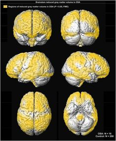 Untreated sleep apnea in children can harm brain cells tied to cognition and mood - Scienmag: Latest Science and Health News