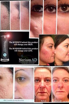 Nerium AD is one bottle for * fine lines and wrinkles * discoloration * large pores * and uneven skin texture! Get yours today at www.awhalbring.nerium.com
