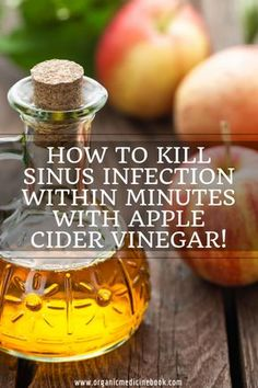 Next Post Previous Post How To Kill Sinus Infection Within Minutes With Apple Cider Vinegar! Herbal Remedies, Health Remedies, Home Remedies, Cough Remedies, Natural Cures, Natural Health, Natural Treatments, Natural Life, Infection Des Sinus