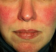 Acne Rosacea symptoms are present when rosacea looks like and is often mistaken for, acne. There are four types of Rosacea but one of them looks like acne Acne Rosacea, Rosacea Makeup, Skin Rash On Face, Face Rash Remedies, Redness On Face, Natural Remedies For Rosacea, Hair And Beauty, Home Remedies, Health