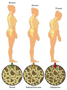 Many menopause age women suffer from the symptoms of osteoporosis! Learn about the causes of osteoporosis and get tips for prevention and treatment today! Kyphosis Exercises, Osteoporosis Exercises, Posture Exercises, Young Living Oils, Young Living Essential Oils, Arthritis, Musculoskeletal System, Hip Problems, Bones