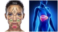 Your Face is Covered With Signs, Here's How To Tell What's Wrong With Your Kidneys, Hormones And Liver - http://eradaily.com/face-covered-signs-heres-tell-whats-wrong-kidneys-hormones-liver/