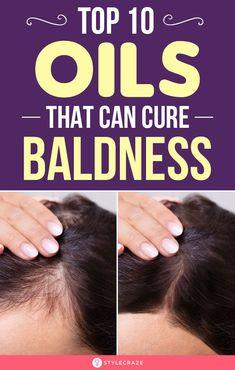 Hair Growth Tips, Natural Hair Growth, Hair Care Tips, Natural Hair Styles, Hair Lice, The Cure, Oil For Hair Loss, Hair Loss Remedies, Hair Treatments