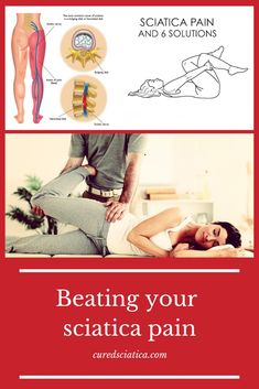 I hope this helps some of you get started with your sciatica treatment. Treating Sciatica, Sciatica Stretches, Sciatica Symptoms, Sciatica Pain Relief, Sciatic Pain, Headache Relief, Back Pain Relief, Disco Intervertebral, Weights