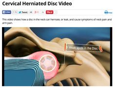 Learn what a herniated disc looks like in your neck and why it can cause so much pain. Chiropractic care can be a great option for relieving pain from this kind of injury.  Call your chiropractor to find out more. www.brain-bodyhealth.com
