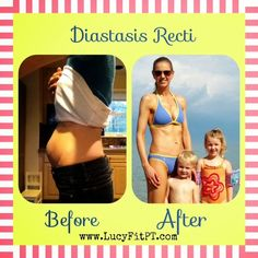 Diastasis Recti; Before and After