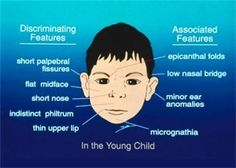 Facial effects down of syndrome